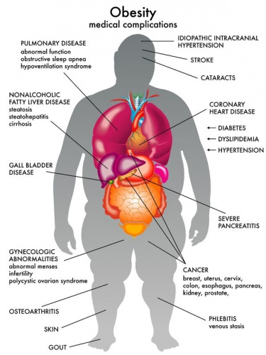 obesity_complications20332591_M